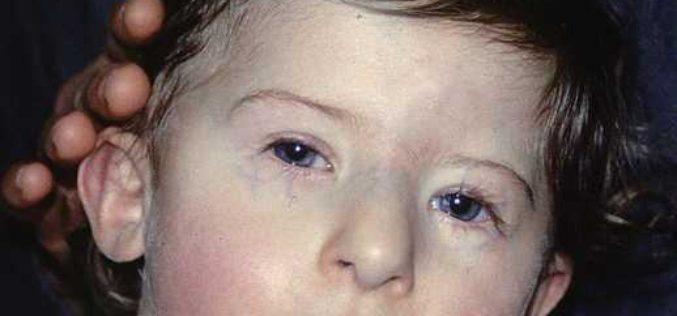 Xromosoma kasalliklari